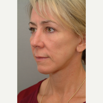 45-54 year old woman treated with Facelift after 2977389