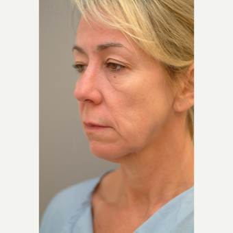 45-54 year old woman treated with Facelift before 2977389