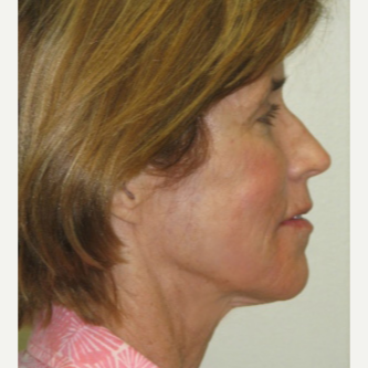 55-64 year old woman treated with Sculptra and Skin Tightening Laser after 3243217