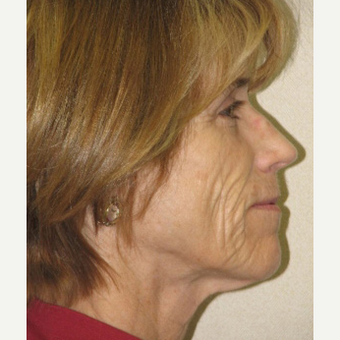 55-64 year old woman treated with Sculptra and Skin Tightening Laser before 3243217