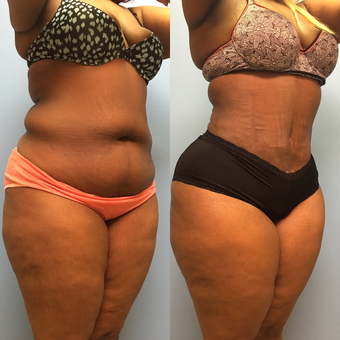 30 year old woman treated with Tummy Tuck and Lipo 360 before 3174798