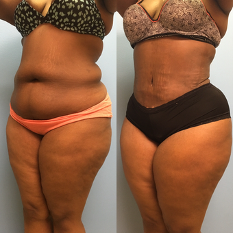 30 year old woman treated with Tummy Tuck and Lipo 360 after 3174798