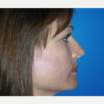 Rhinoplasty after 3241544