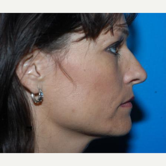 Rhinoplasty before 3241544