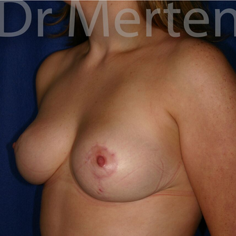 Breast Reduction after 3681343