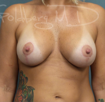 Breast Lift with Implants after 3731581