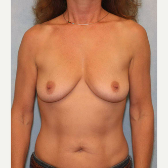 45-54 year old woman treated with Breast Augmentation before 3487417