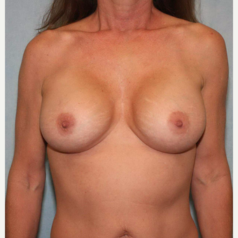 45-54 year old woman treated with Breast Augmentation after 3487417