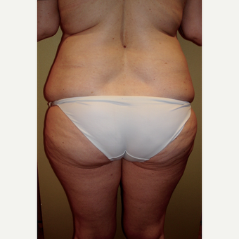 45-54 year old woman treated with Liposuction before 2852514