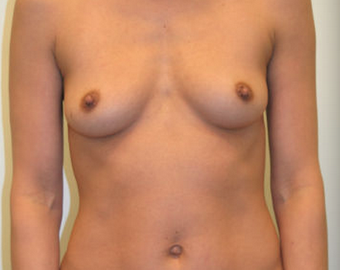 Breast augmentation before and after before 967456