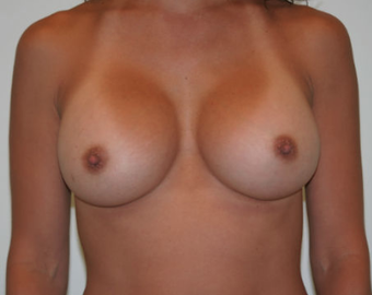 Breast augmentation before and after after 967456