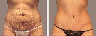 Tummy Tuck before 1316357