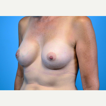 45-54 year old woman treated with Breast Implants after 3440072
