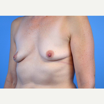 45-54 year old woman treated with Breast Implants before 3440072