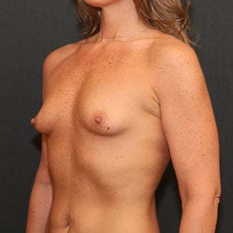 Breast Augmentation before 959125
