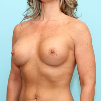 Breast Augmentation after 959125