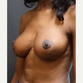 25-34 year old woman treated with Breast Reduction after 2043734