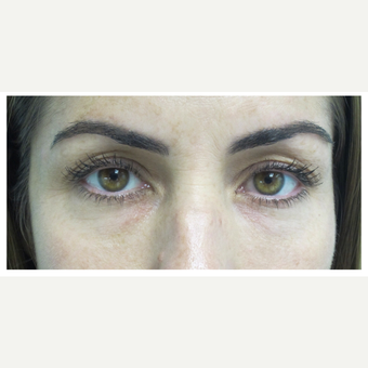 35-44 year old woman treated with Restylane after 2830054