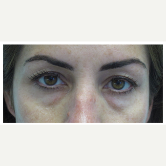 35-44 year old woman treated with Restylane before 2830054