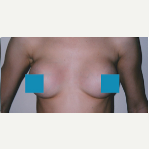 25-34 year old woman treated with Breast Augmentation after 3374821