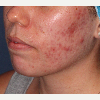 18-24 year old woman treated with Laser Treatment before 3149520