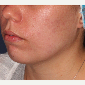 18-24 year old woman treated with Laser Treatment after 3149520