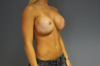 28yo Breast Augmentation Revision 989622