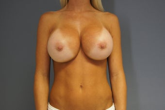 28yo Breast Augmentation Revision