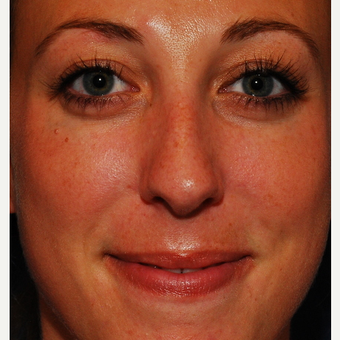 25-34 year old woman treated with Rhinoplasty before 3624318