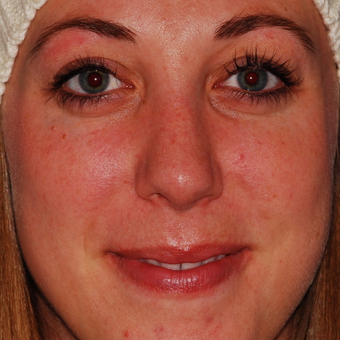 25-34 year old woman treated with Rhinoplasty after 3624318