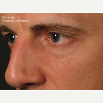 Non Surgical Under Eyes on Middle-Aged Man before 2977596