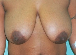 Breast Lift with Implants before 1655870