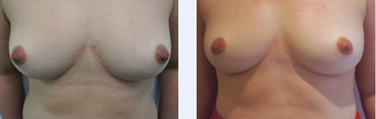 39 Year Old Female Nipple Reduction Patient before 1346678