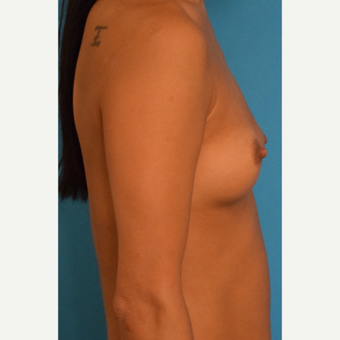 35-44 year old woman treated with Breast Augmentation before 3423679