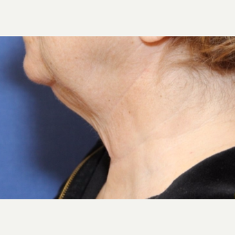 70 year old woman with a Neck Lift before 3588396