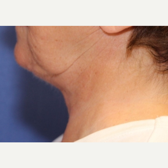 70 year old woman with a Neck Lift after 3588396