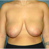 18 year old woman treated with Breast Lift before 3665868