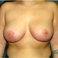 18 year old woman treated with Breast Lift after 3665868