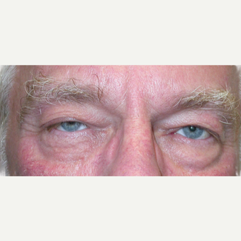 65-74 year old man treated with Eyelid Surgery before 3763181