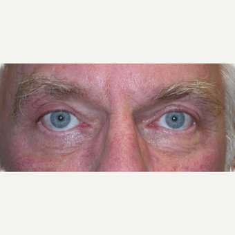 65-74 year old man treated with Eyelid Surgery after 3763181