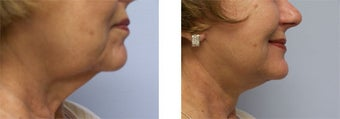 Face and Neck Lift before 220930