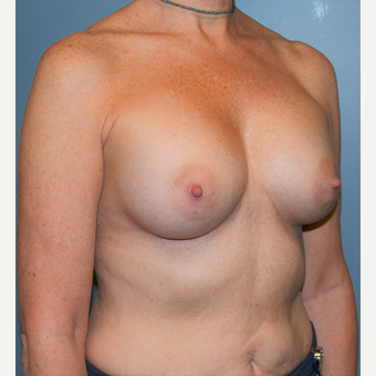 55-64 year old woman treated with Breast Augmentation after 3710763