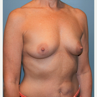 55-64 year old woman treated with Breast Augmentation before 3710763