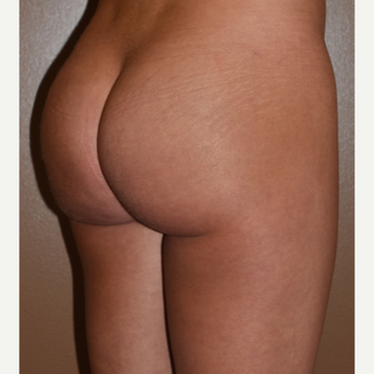 25-34 year old woman treated with Butt Implants after 3600638