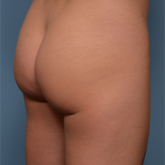 25-34 year old woman treated with Butt Implants before 3600638