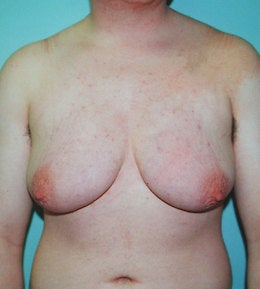 41-Year-Old Male Breast Reduction before 668286