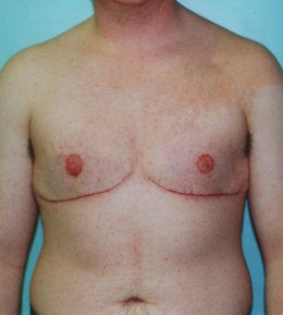 41-Year-Old Male Breast Reduction after 668286