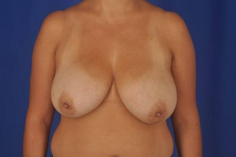 41 - year old woman desired breast reduction