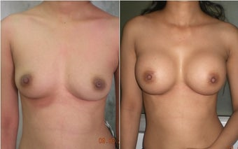 Breast Augmentation before 1199831
