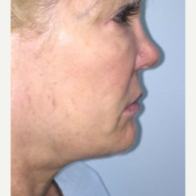 45-54 year old woman treated with Smart Lipo to the chin and neck before 3414765